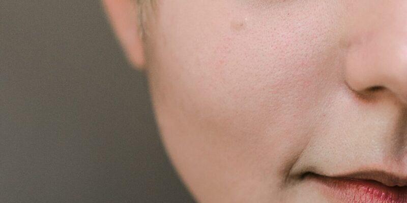 acne treatment with tea tree oil